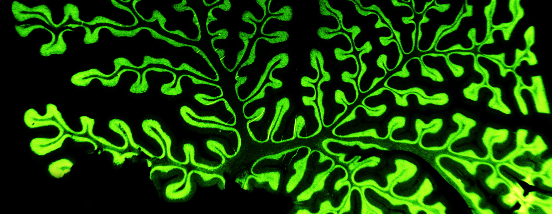 Bright green stain of brain tissue