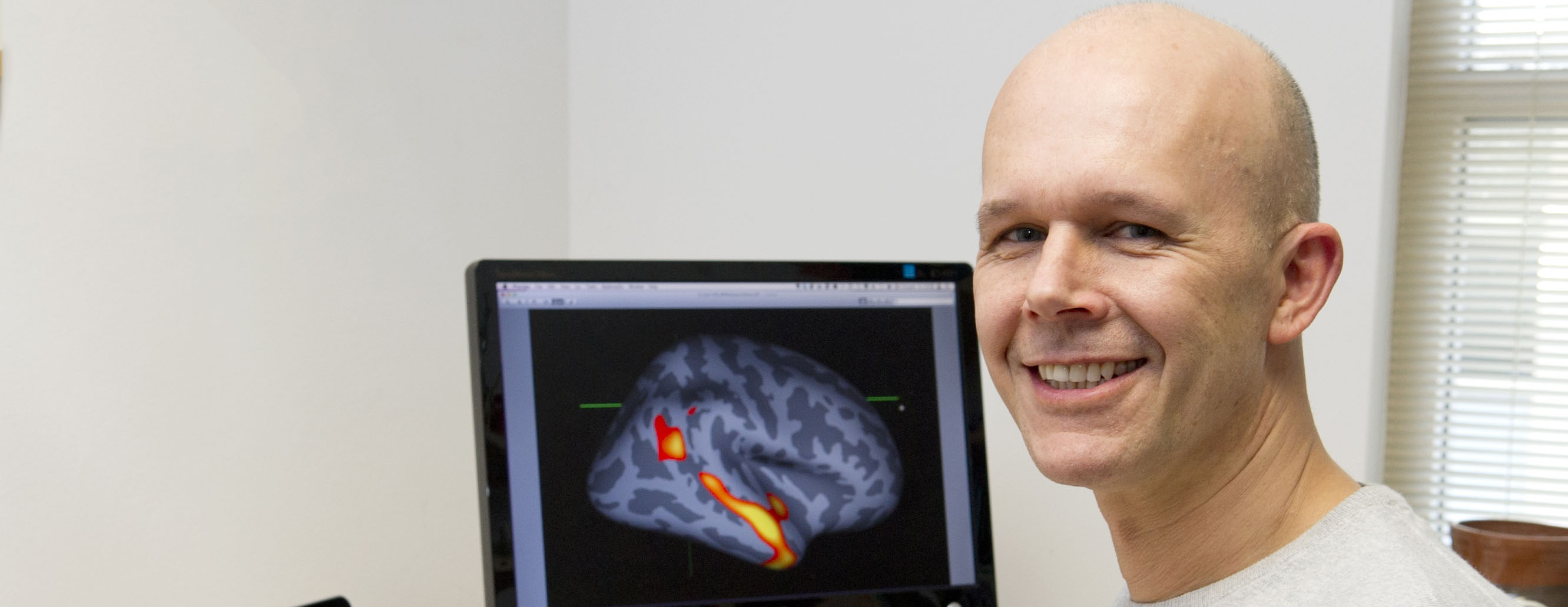 Olivier Piguet views scan of brain with dementia